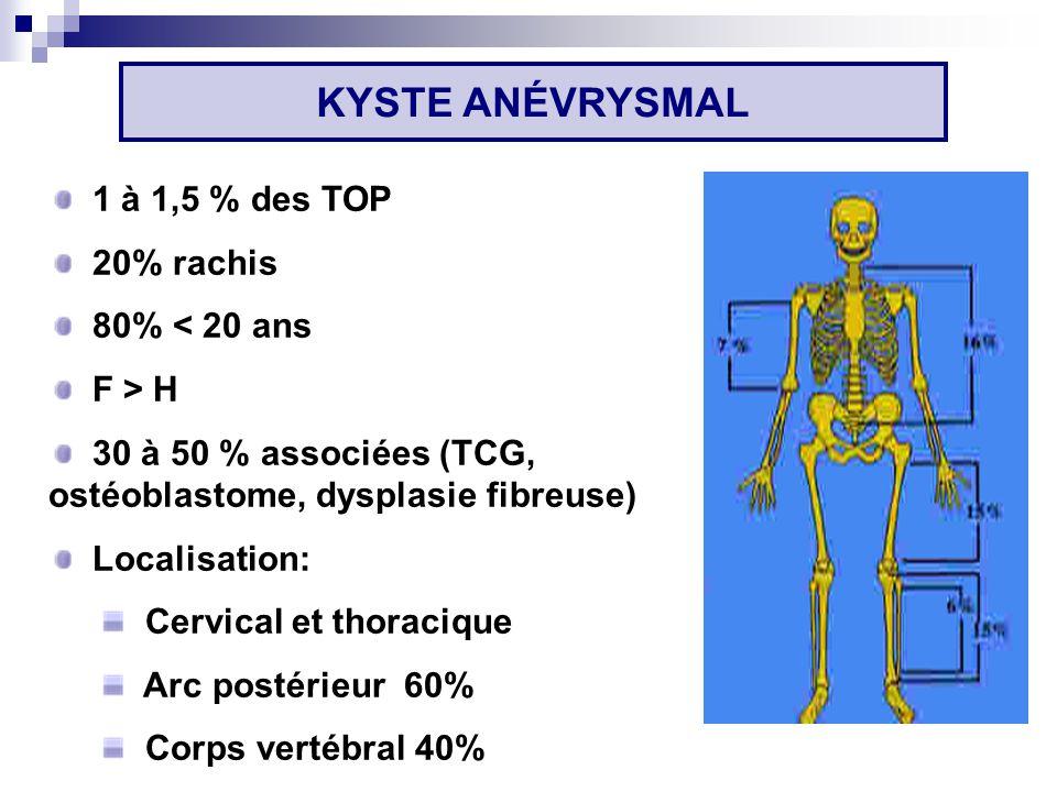 KYSTE ANÉVRYSMAL 1 à 1,5 % des TOP 20% rachis 80% < 20 ans F > H