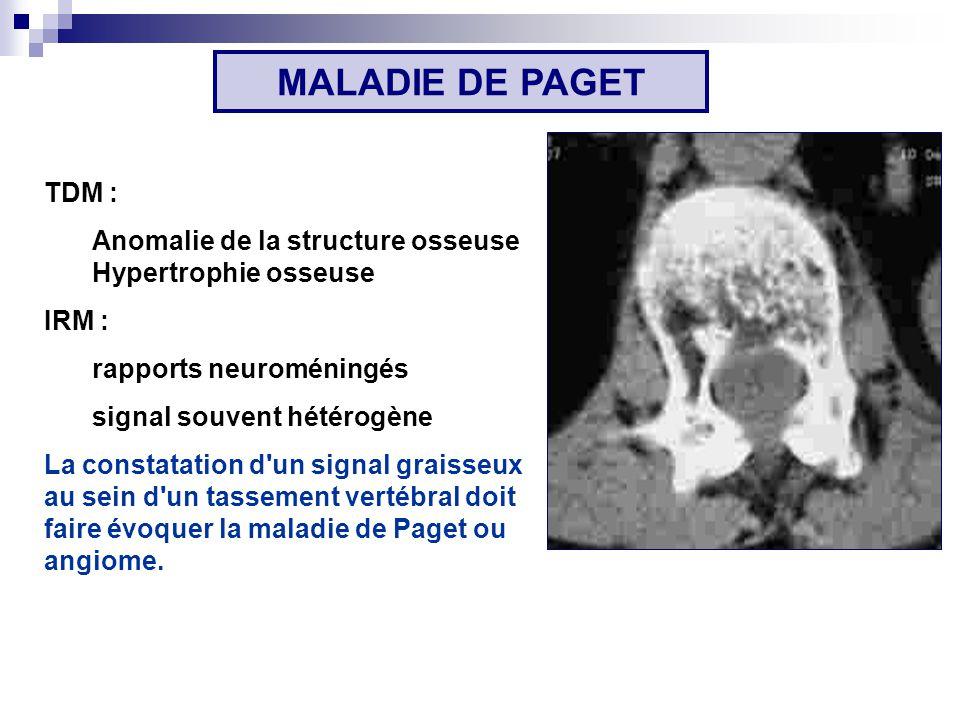 MALADIE DE PAGET TDM : Anomalie de la structure osseuse Hypertrophie osseuse. IRM : rapports neuroméningés.