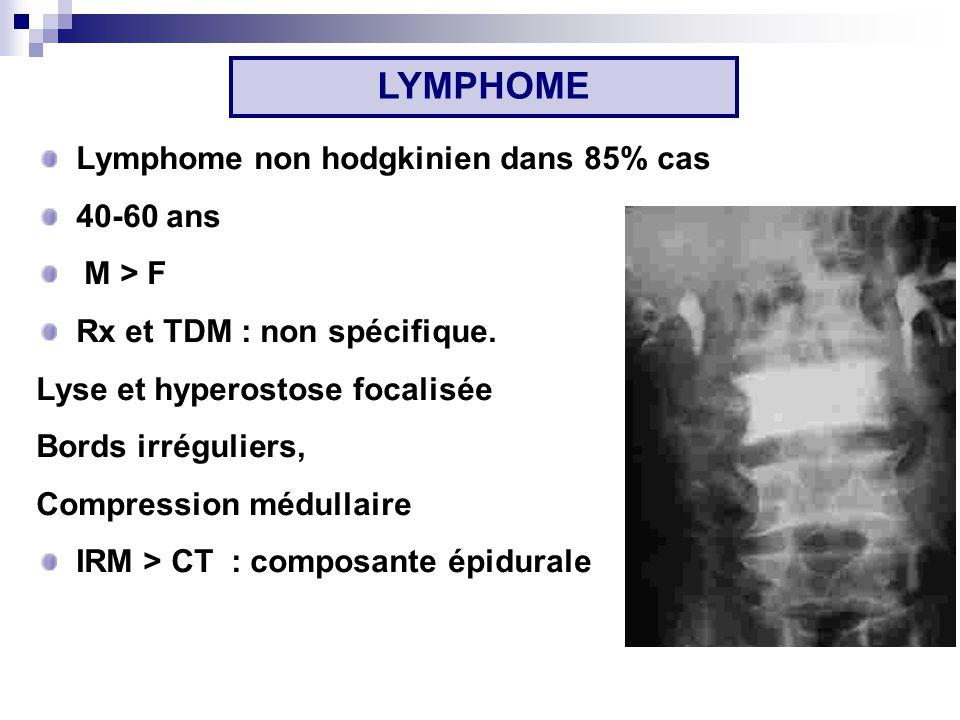 LYMPHOME Lymphome non hodgkinien dans 85% cas 40-60 ans M > F