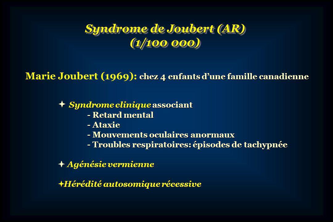 Syndrome de Joubert (AR)