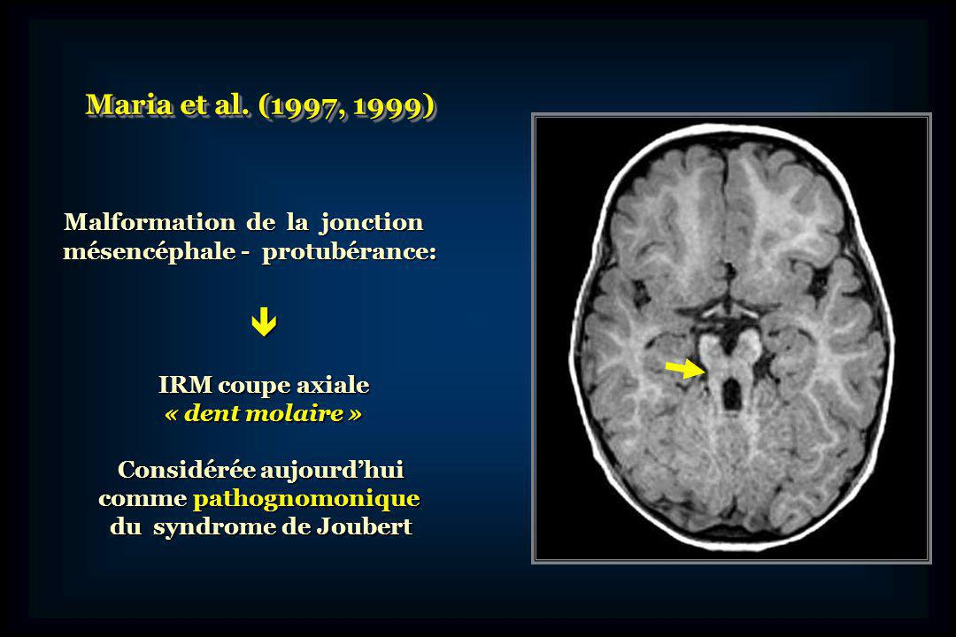  Maria et al. (1997, 1999) Malformation de la jonction