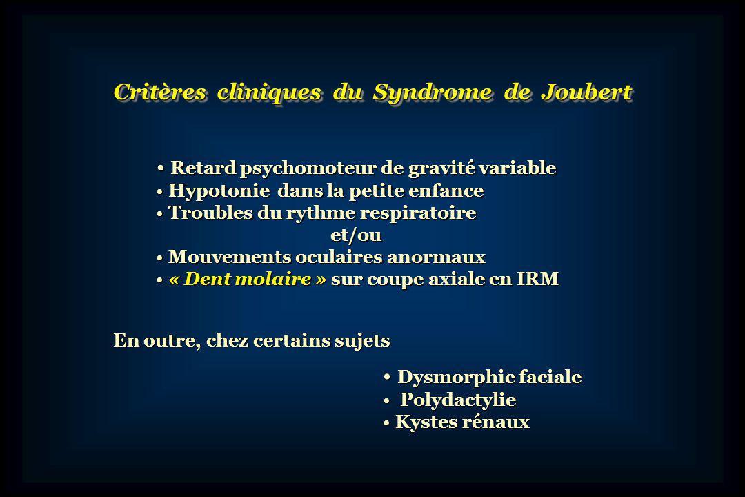 Critères cliniques du Syndrome de Joubert