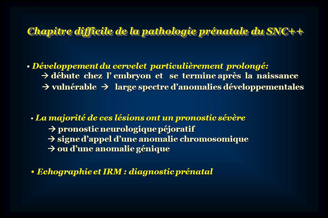 Chapitre difficile de la pathologie prénatale du SNC++