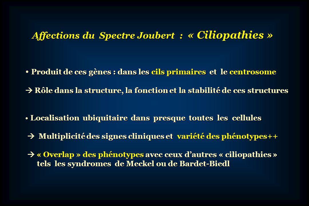 Affections du Spectre Joubert : « Ciliopathies »