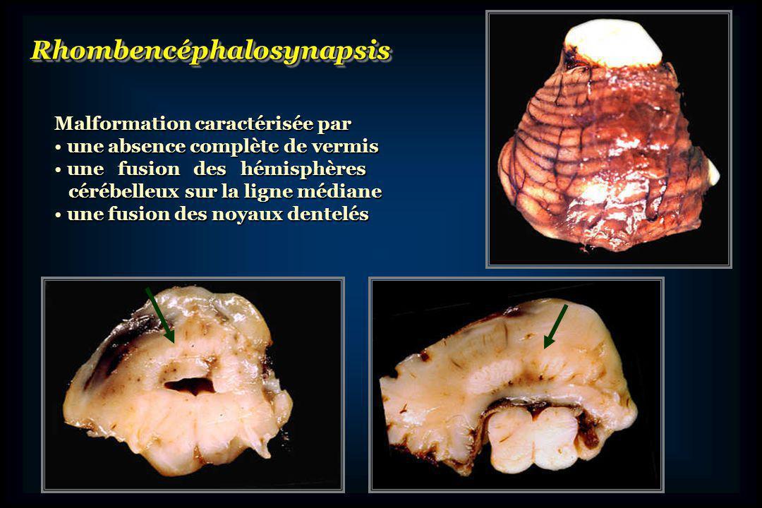 Rhombencéphalosynapsis