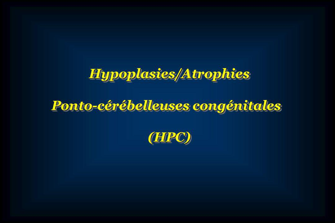 Hypoplasies/Atrophies Ponto-cérébelleuses congénitales