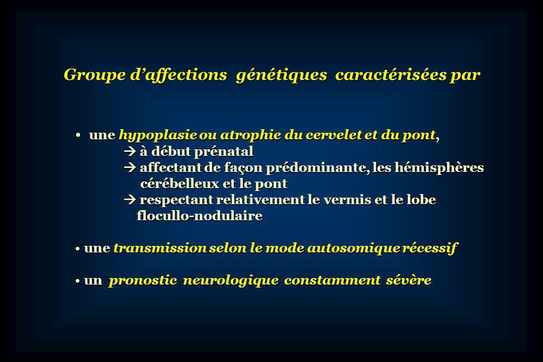 Groupe d'affections génétiques caractérisées par