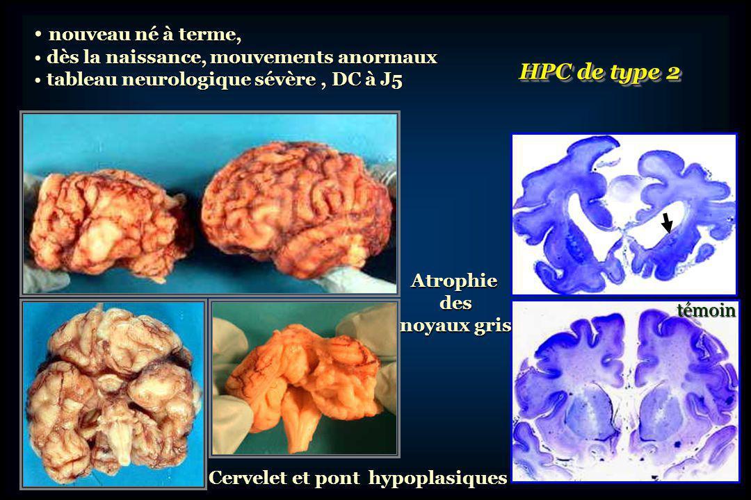 nouveau né à terme, HPC de type 2