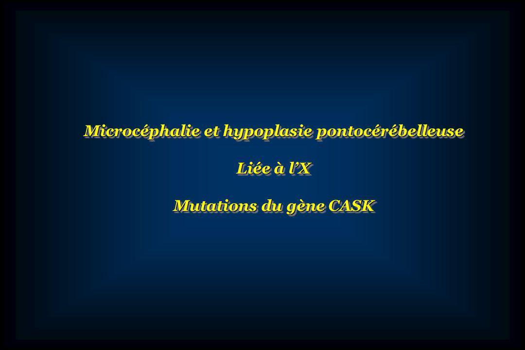 Microcéphalie et hypoplasie pontocérébelleuse