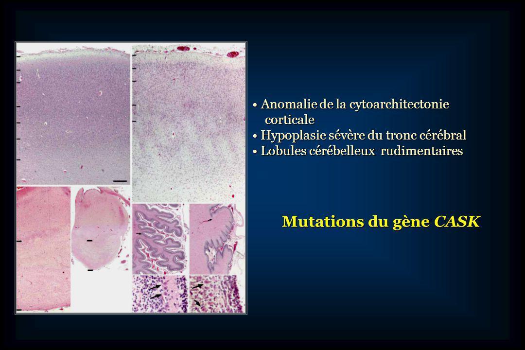 Mutations du gène CASK Anomalie de la cytoarchitectonie corticale
