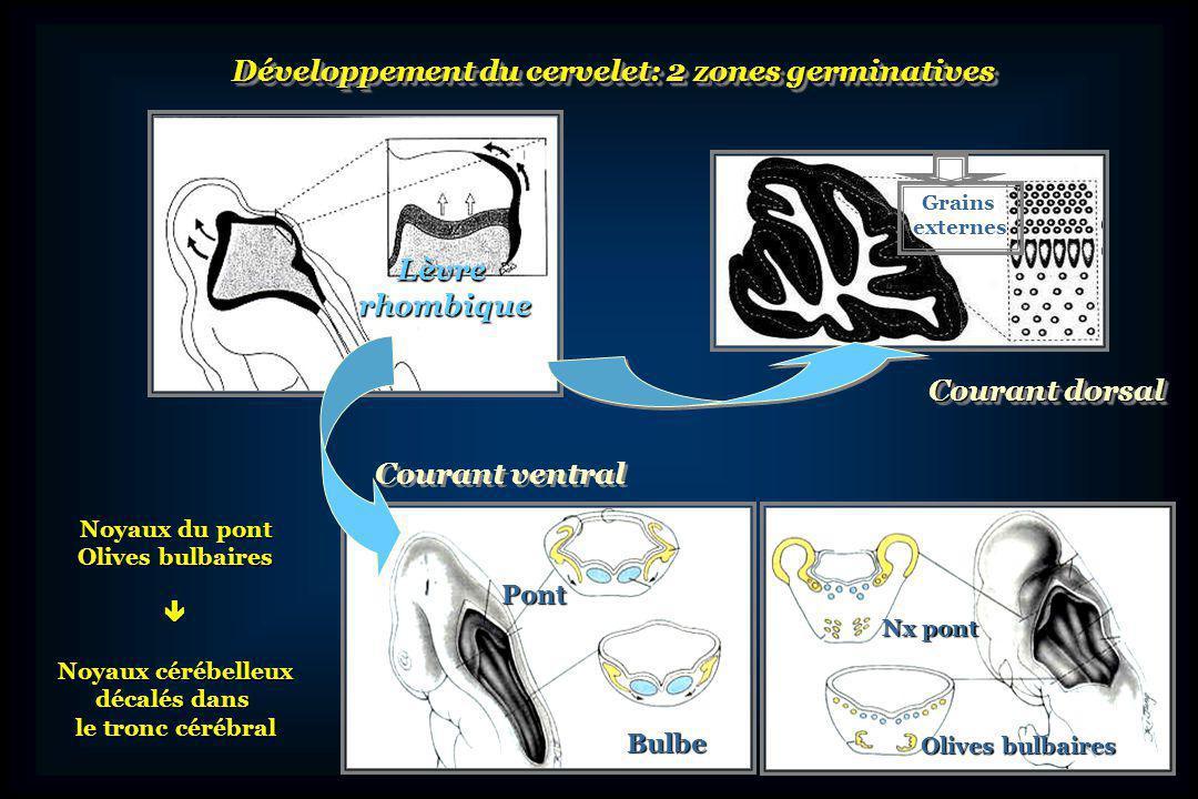 Développement du cervelet: 2 zones germinatives