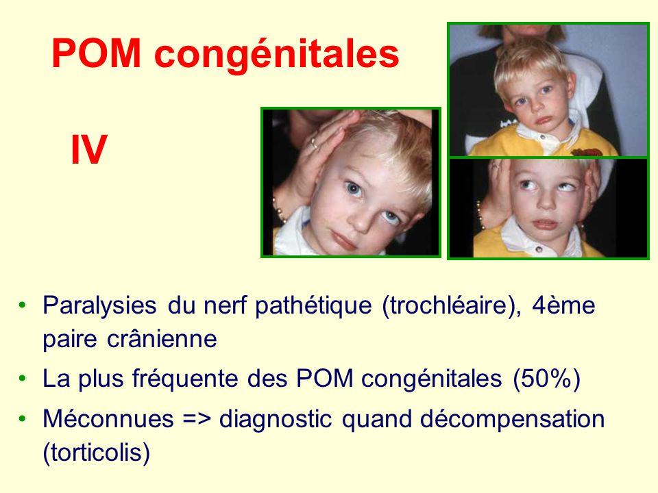 POM congénitales IV. Paralysies du nerf pathétique (trochléaire), 4ème paire crânienne. La plus fréquente des POM congénitales (50%)