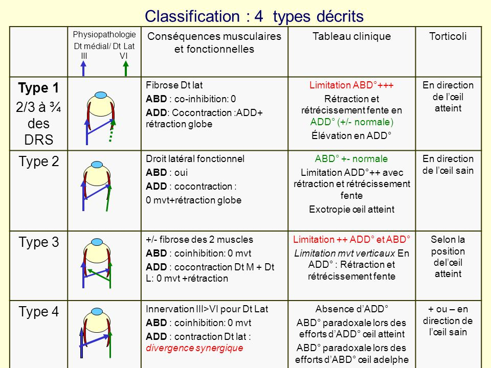 Classification : 4 types décrits