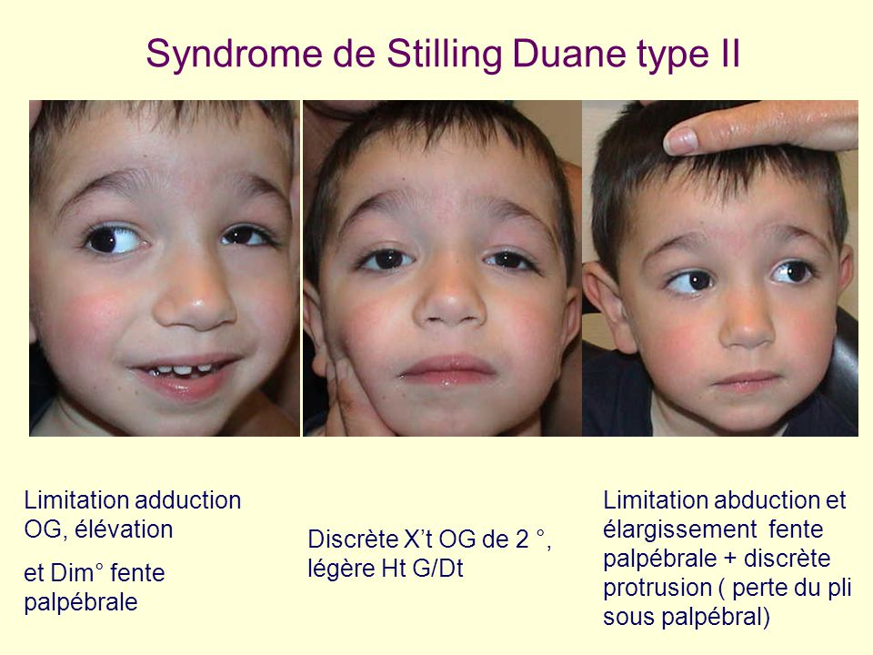 Syndrome de Stilling Duane type II