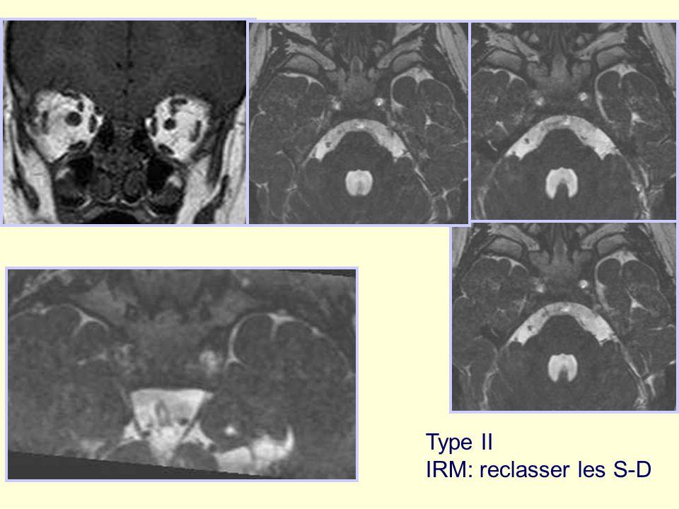 Type II IRM: reclasser les S-D