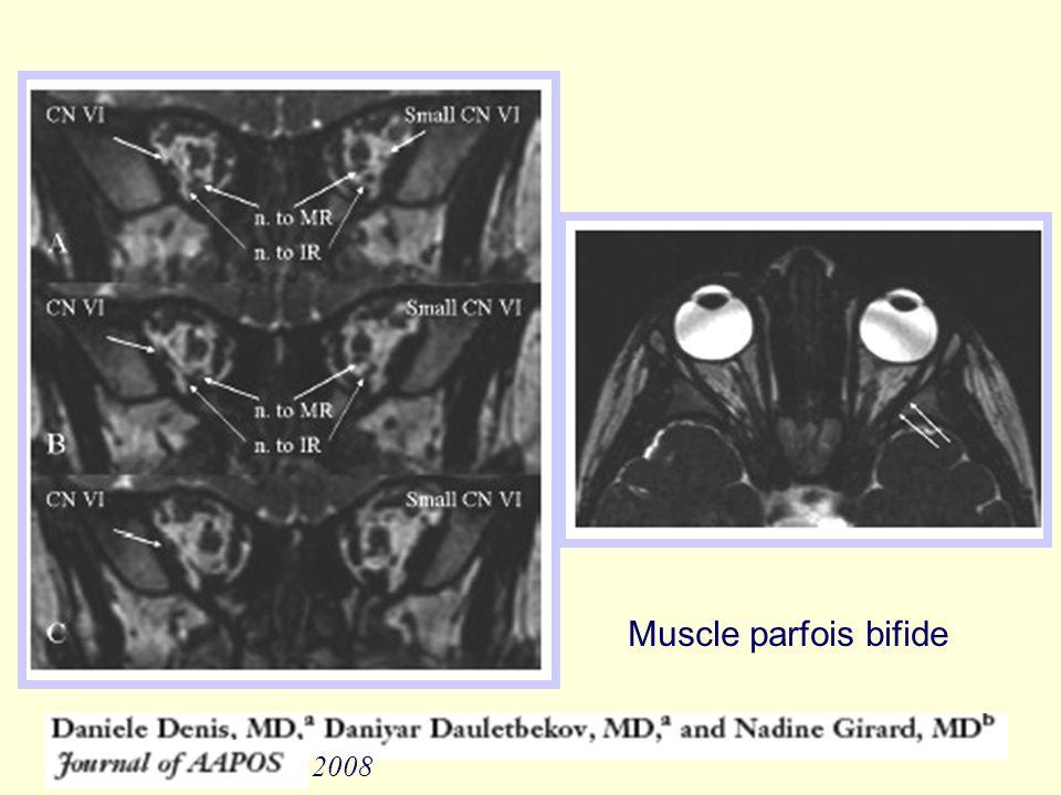 Muscle parfois bifide 2008