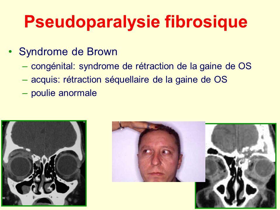 Pseudoparalysie fibrosique