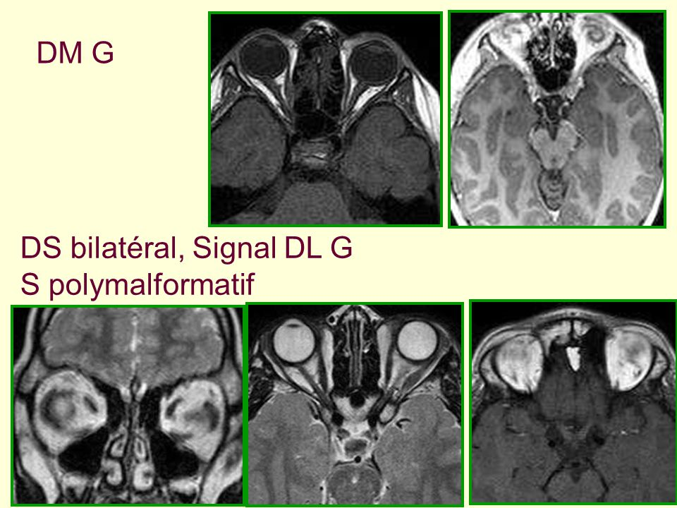 DM G DS bilatéral, Signal DL G S polymalformatif