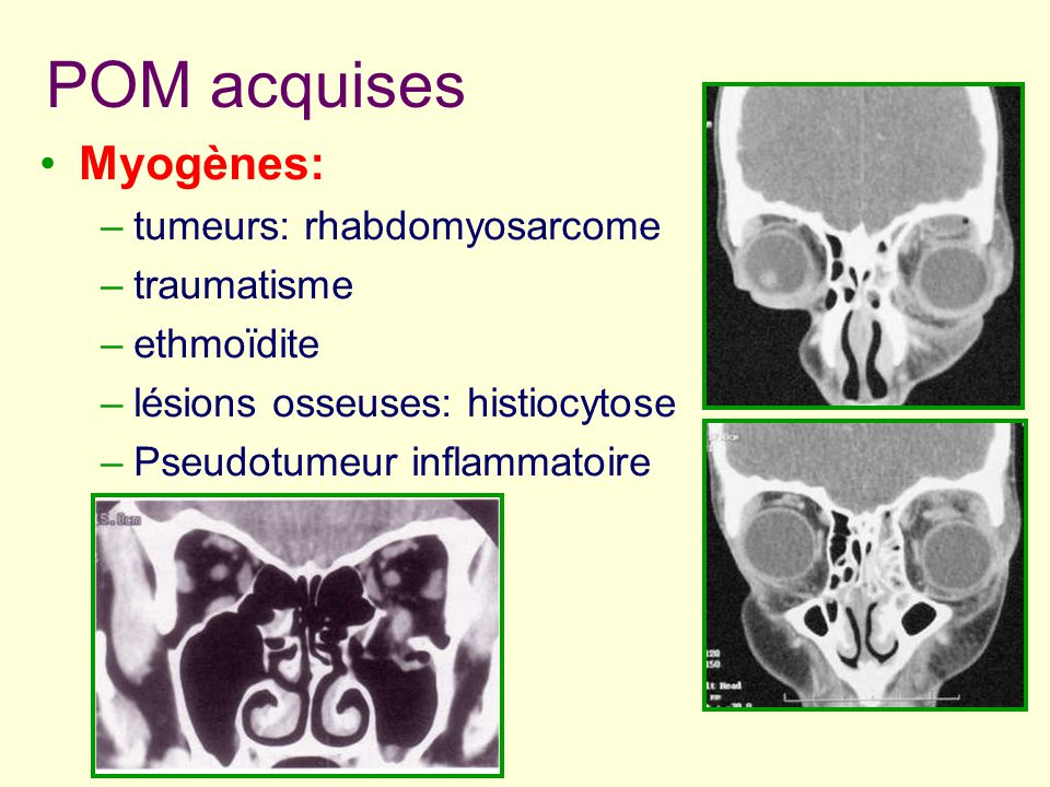 POM acquises Myogènes: tumeurs: rhabdomyosarcome traumatisme