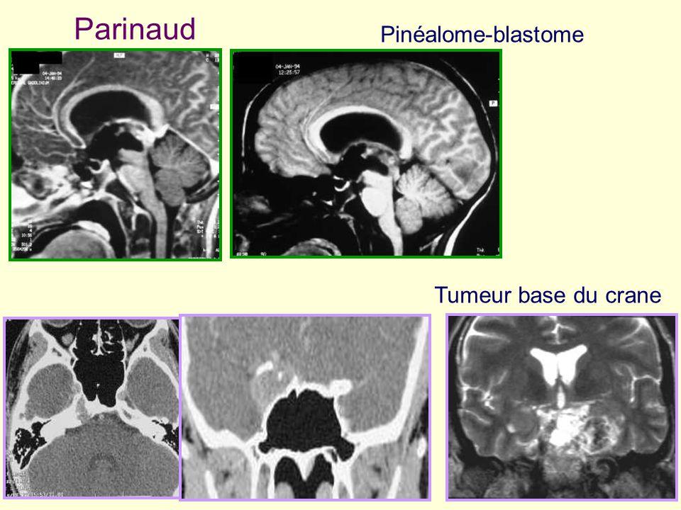 Parinaud Pinéalome-blastome Tumeur base du crane