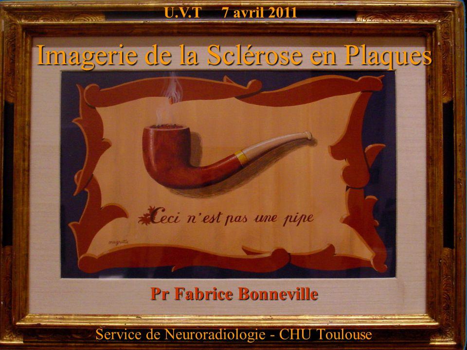Imagerie de la Sclérose en Plaques