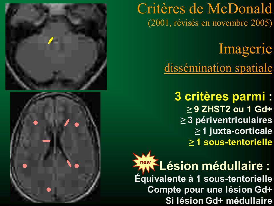 Critères de McDonald (2001, révisés en novembre 2005) Imagerie dissémination spatiale