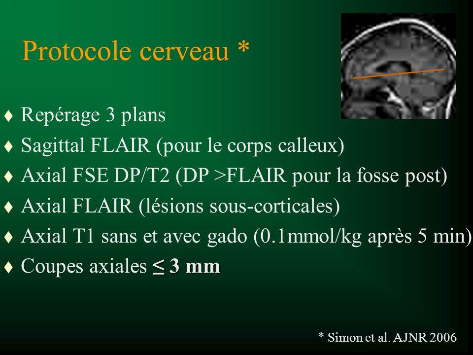Protocole cerveau * Repérage 3 plans