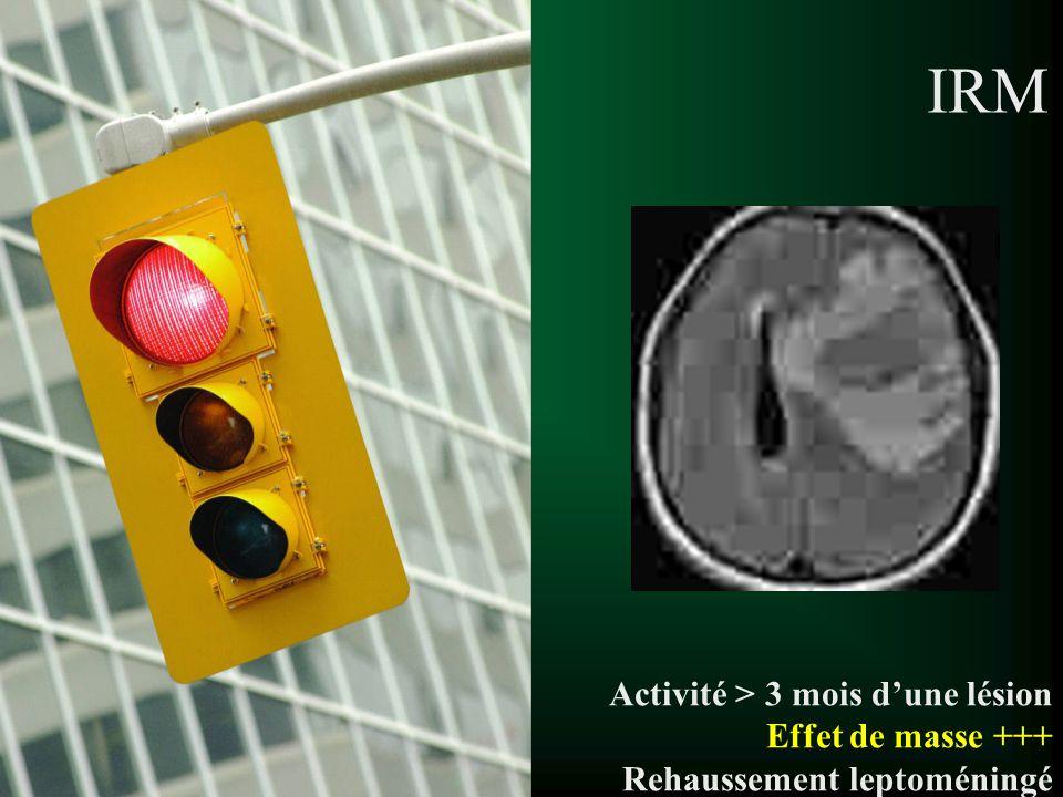 IRM Activité > 3 mois d'une lésion Effet de masse +++