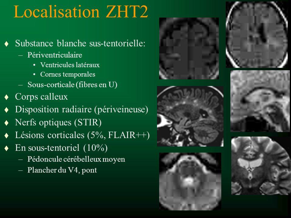 Localisation ZHT2 Substance blanche sus-tentorielle: Corps calleux