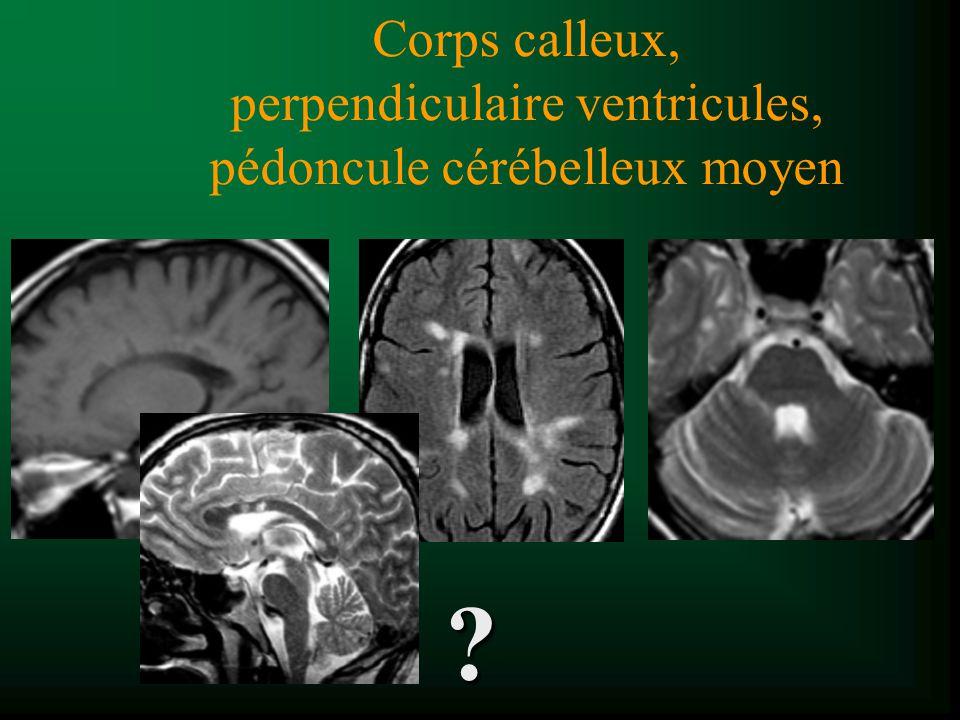 Corps calleux, perpendiculaire ventricules, pédoncule cérébelleux moyen