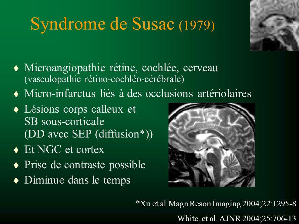 Syndrome de Susac (1979) Microangiopathie rétine, cochlée, cerveau (vasculopathie rétino-cochléo-cérébrale)