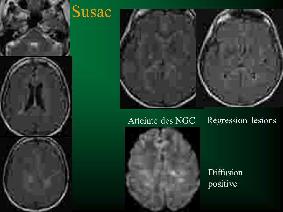 Susac Atteinte des NGC Régression lésions Diffusion positive