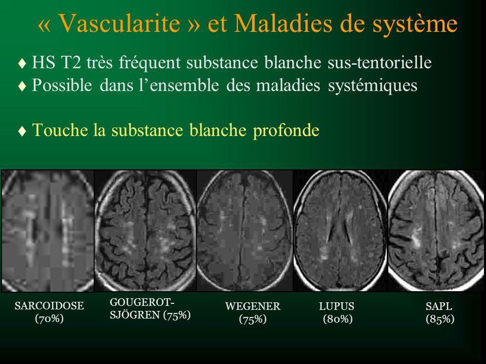 « Vascularite » et Maladies de système
