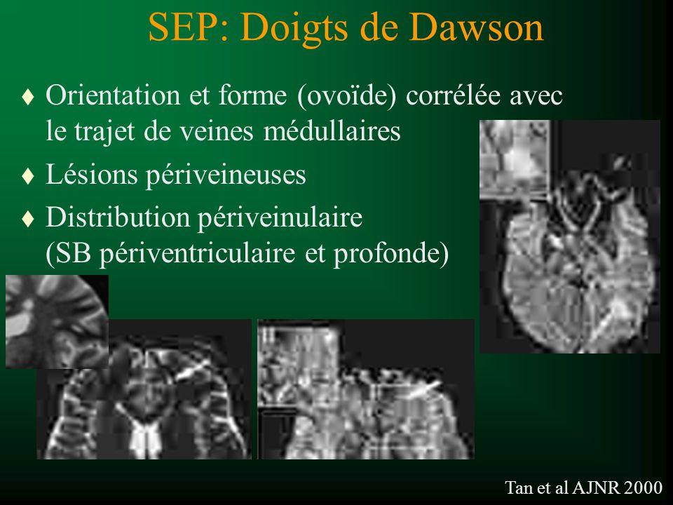 SEP: Doigts de Dawson Orientation et forme (ovoïde) corrélée avec le trajet de veines médullaires. Lésions périveineuses.