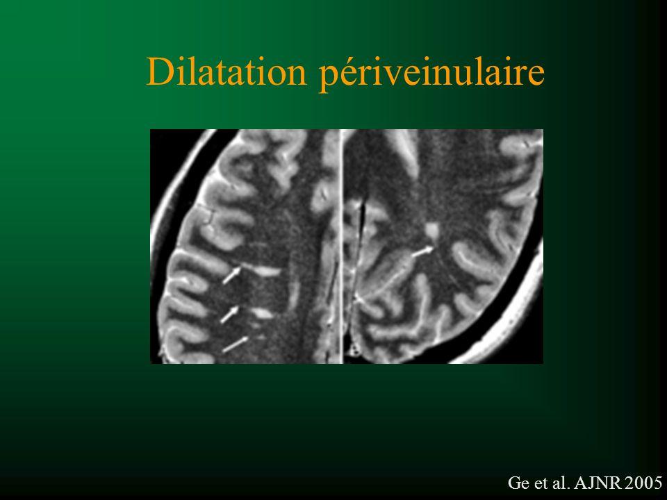 Dilatation périveinulaire