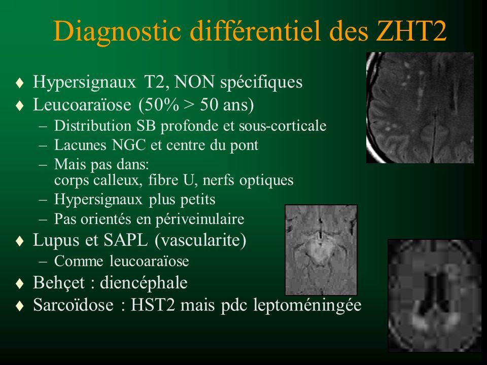 Diagnostic différentiel des ZHT2