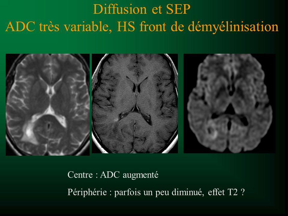 Diffusion et SEP ADC très variable, HS front de démyélinisation