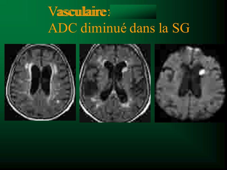 Vasculaire: ADC diminué dans la SG