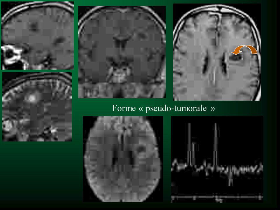 Forme « pseudo-tumorale »