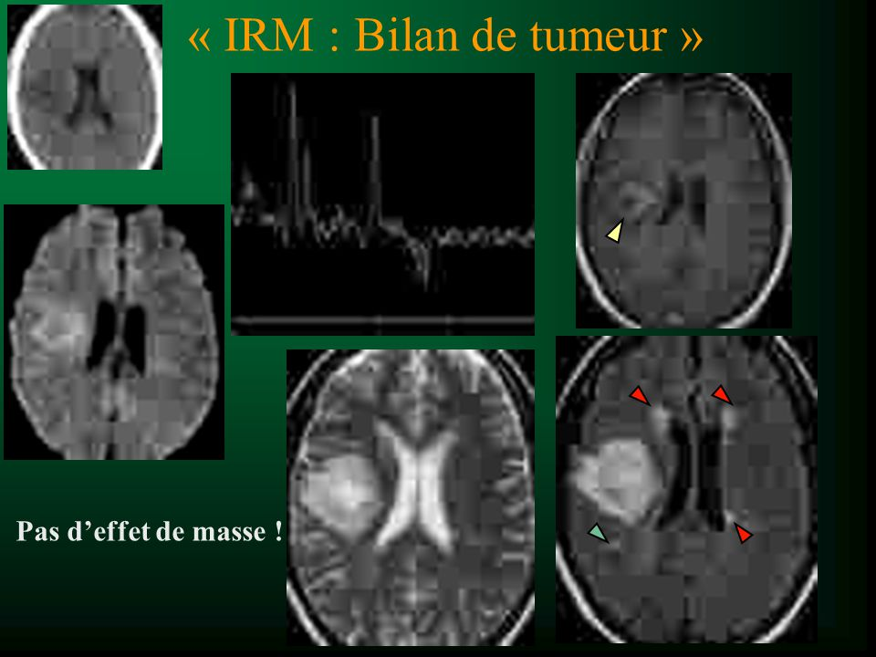 « IRM : Bilan de tumeur » Pas d'effet de masse !
