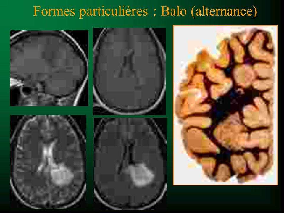 Formes particulières : Balo (alternance)