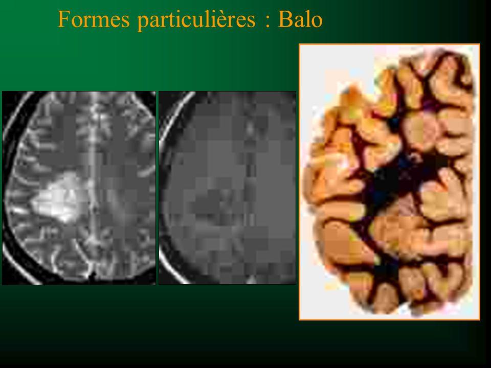 Formes particulières : Balo
