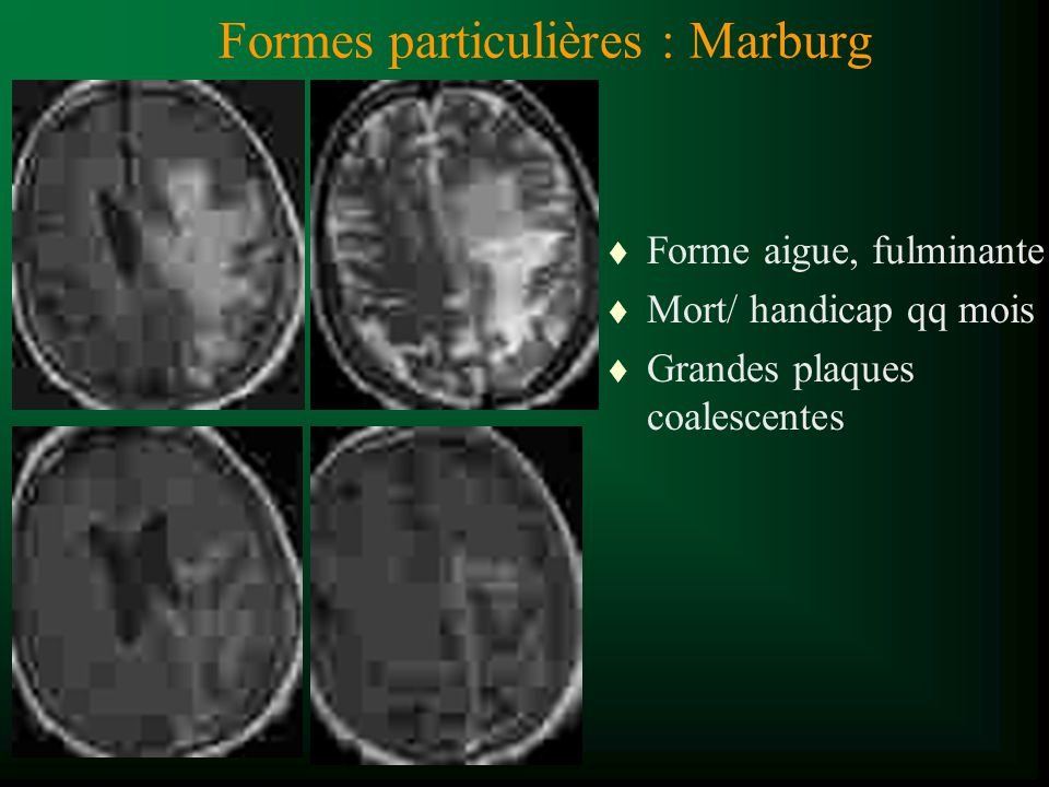 Formes particulières : Marburg