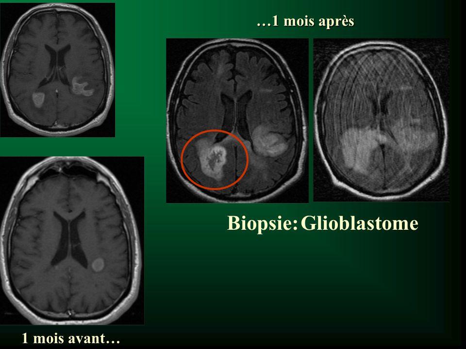 Biopsie: Glioblastome