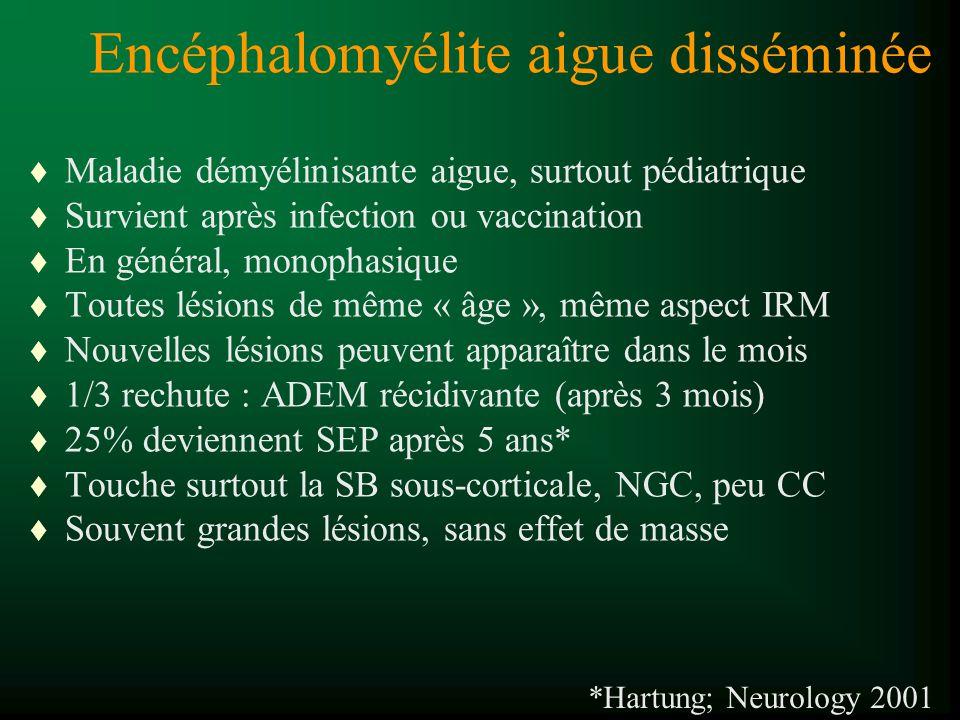 Encéphalomyélite aigue disséminée
