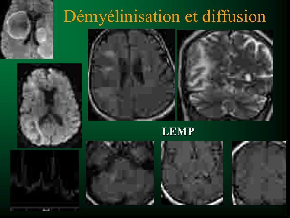Démyélinisation et diffusion