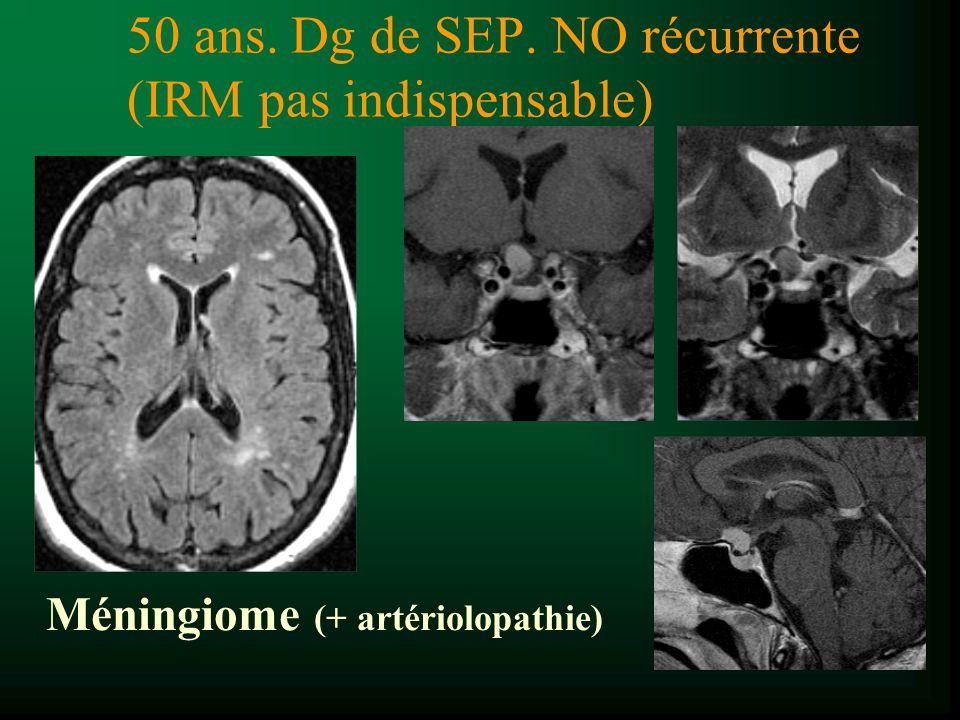 50 ans. Dg de SEP. NO récurrente (IRM pas indispensable)
