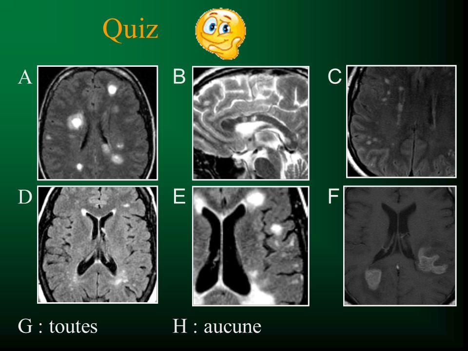 Quiz A D G : toutes B E H : aucune C F