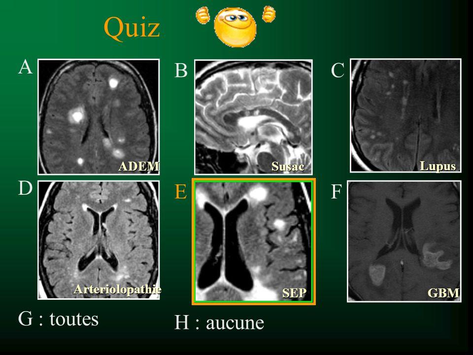 Quiz A D G : toutes B E H : aucune C F ADEM Susac Lupus