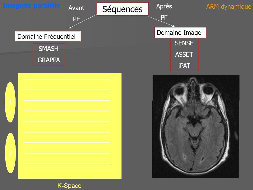 Séquences Imagerie parallèle Après ARM dynamique Avant PF PF